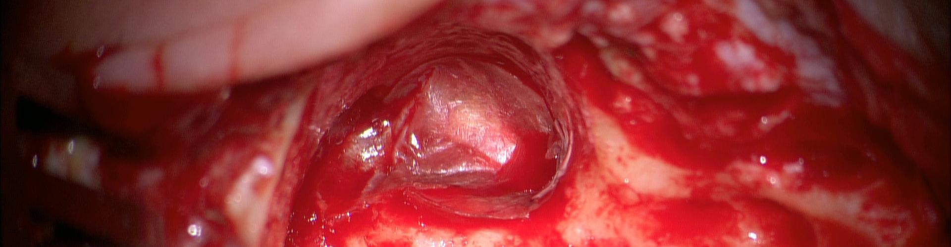 05%2bcirurgia%2bdo%2bouvido%2bcronico%2bcapa