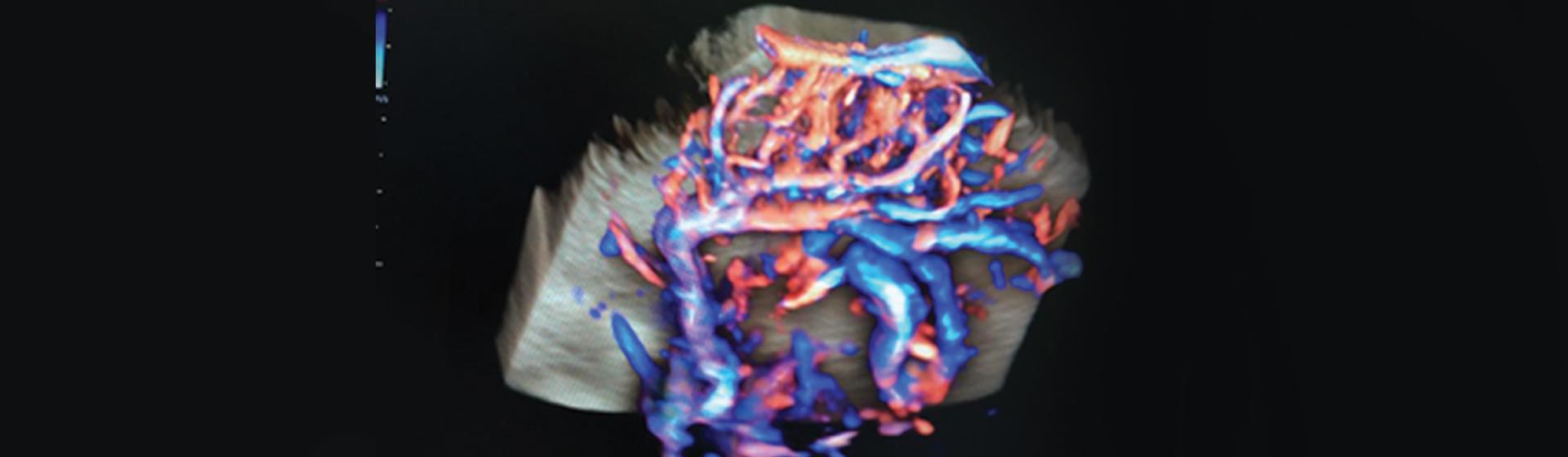 Banner curso pos graduacao neuroimagem digital v01