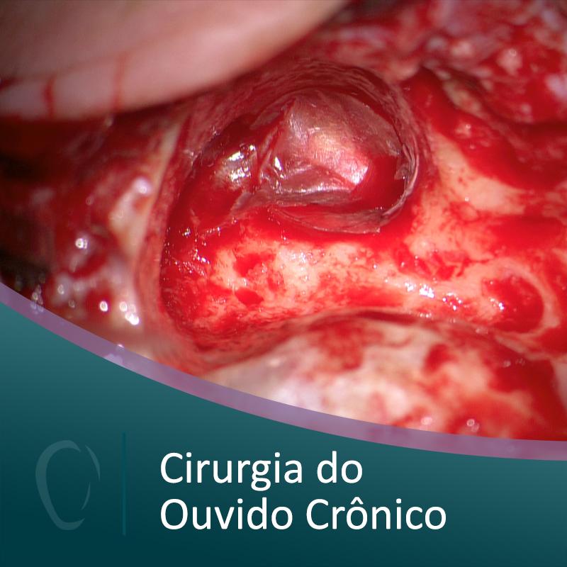 05%2bcirurgia%2bdo%2bouvido%2bcronico