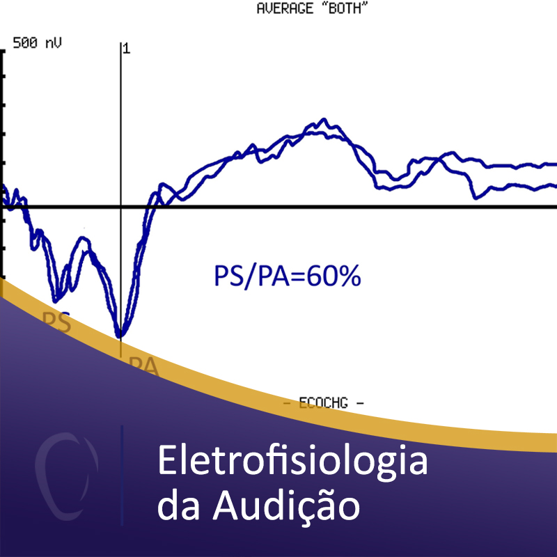 03%2beletrofisiologia%2bda%2baudic%cc%a7a%cc%83o