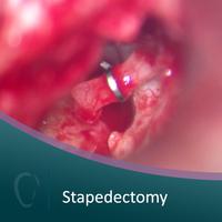 Big 04%2bstapedectomy