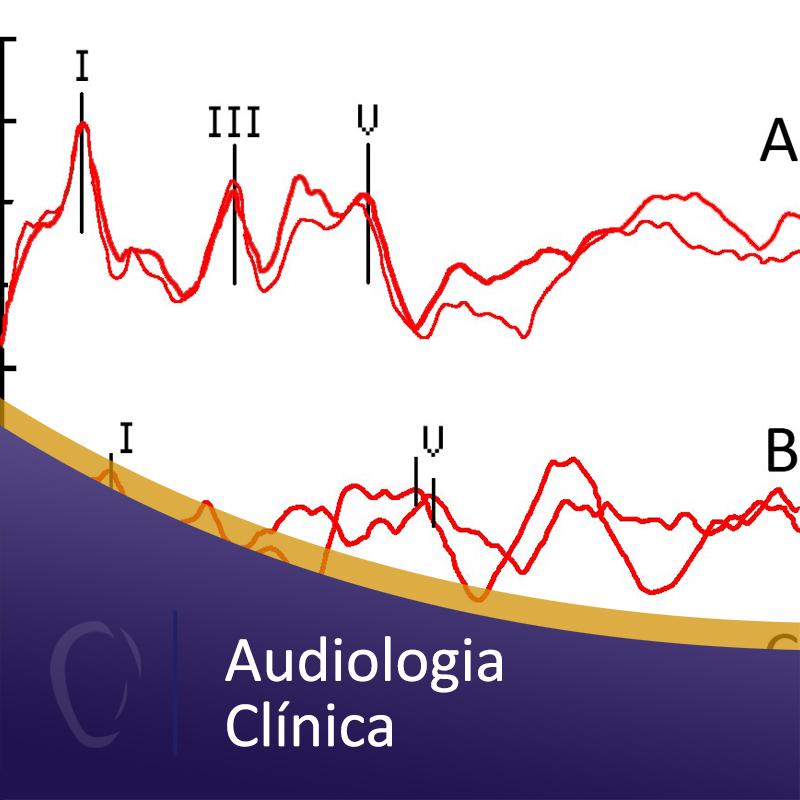 Audiologia%20cli%cc%81nica